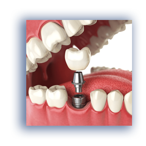 Dental Implants at Herriman Dentist