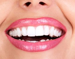 Dental Bonding Result Herriman Dentist