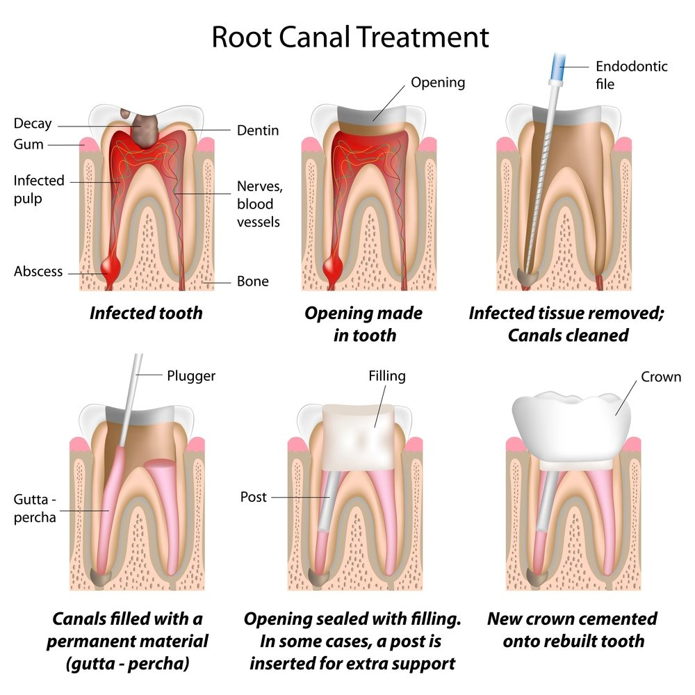 Dental Root Canal at Herriman Dentist Office