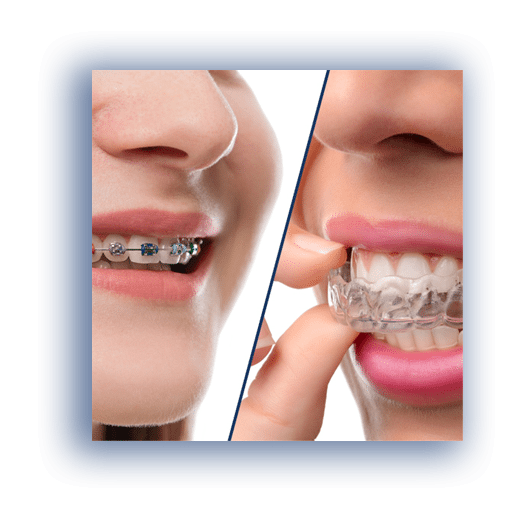 Herriman Orthodontist at Herriman Dentist Office
